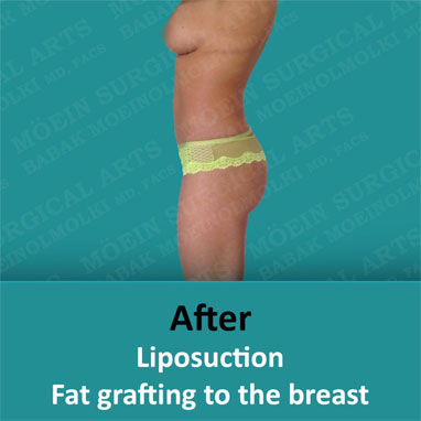 liposuction fat grafting to the breast after image
