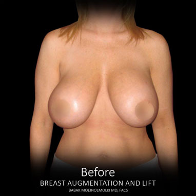 before breast lift and augmentation results