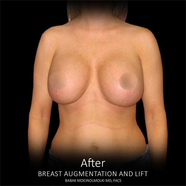 after breast lift and augmentation results