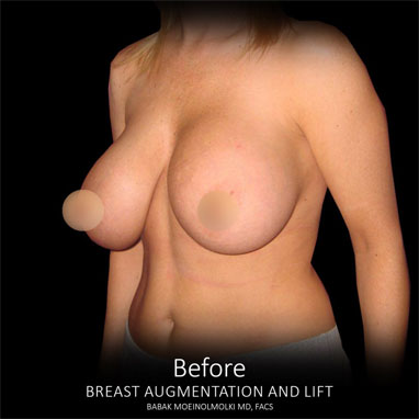 breast lift with breast augmentation before