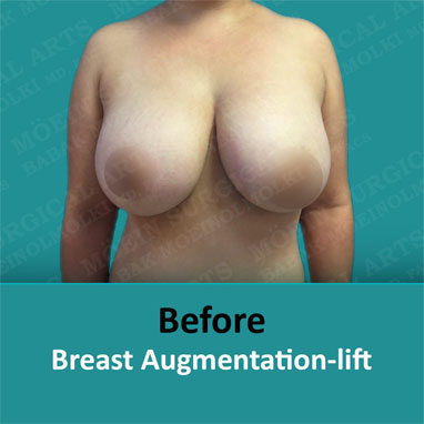 breast augmentation removal and lift before