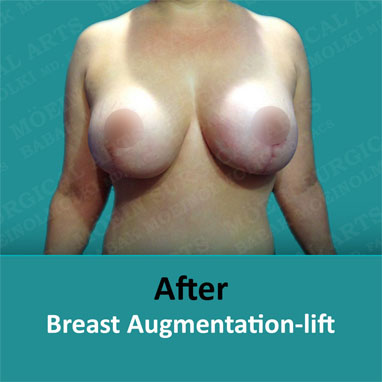 breast augmentation removal and lift after