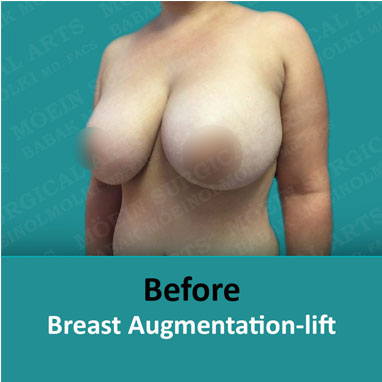 breast augmentation replacement and lift before