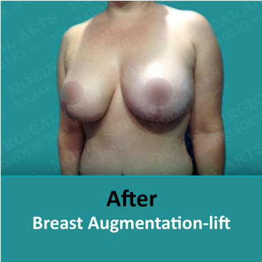 breast augmentation replacement and lift after