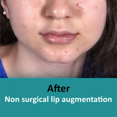 None surgical dermal filler after