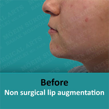 None surgical dermal filler before result
