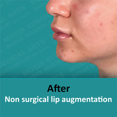 None surgical dermal filler after result
