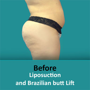 Brazilian lipo butt before