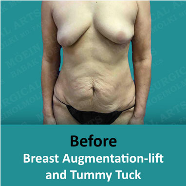 Breast Augmentation-lift before