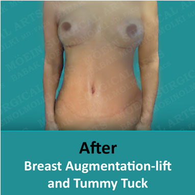 Breast Augmentation-lift after