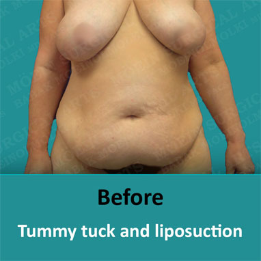 breast reduction and tummy tuck before