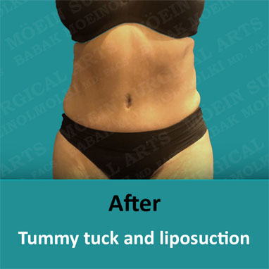 breast reduction and tummy tuck after