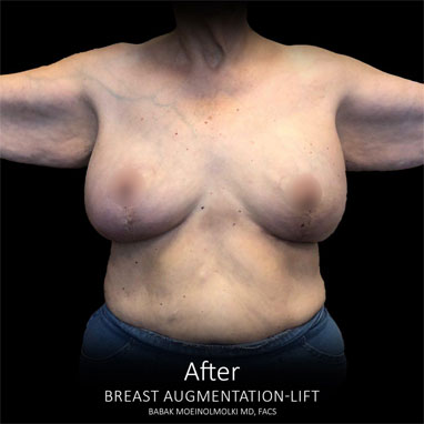 scarless breast lift and augmentation after