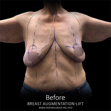 scarless breast lift and augmentation before
