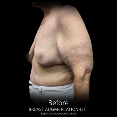 breast augmentation and lift scar before photo