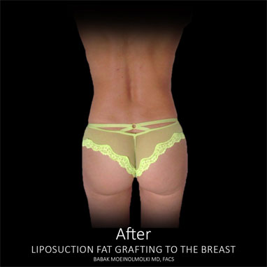 waist reduction surgery after