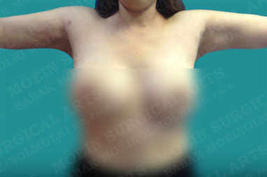 arm reduction liposuction after