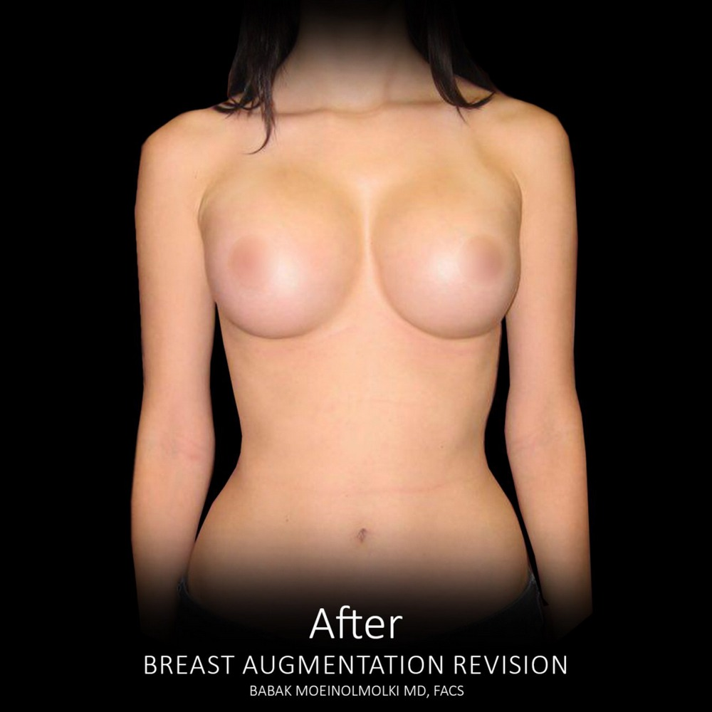 breast implant after revision