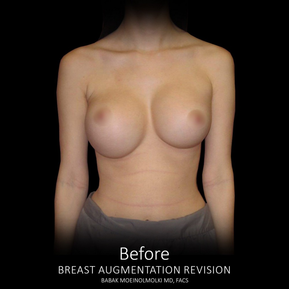 breast implant before revision