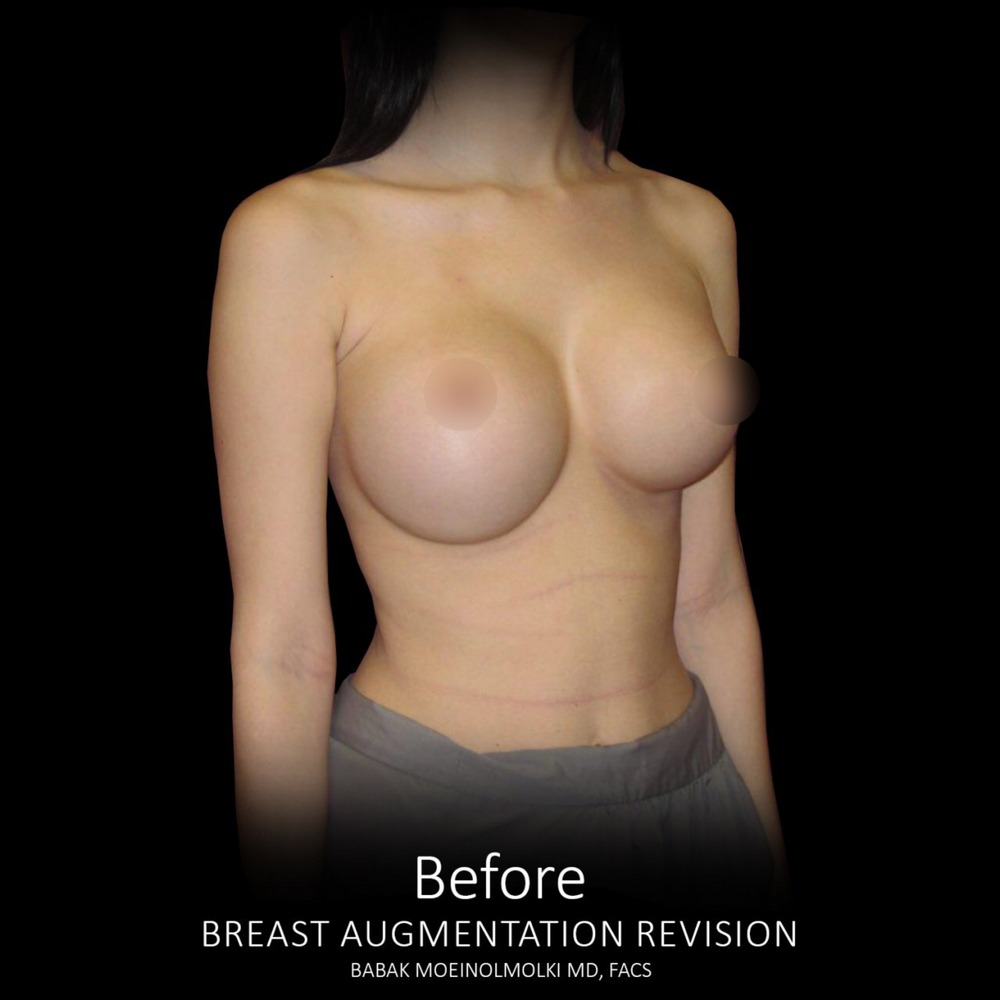 breast before revision