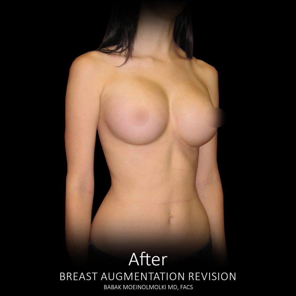 breast after revision