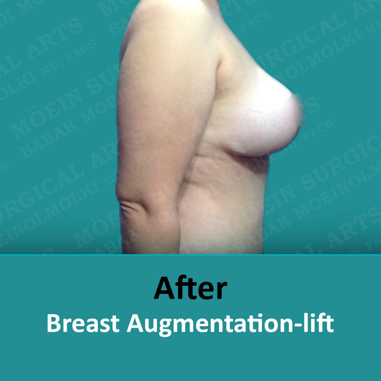 breast lift and augmentation surgery recovery after