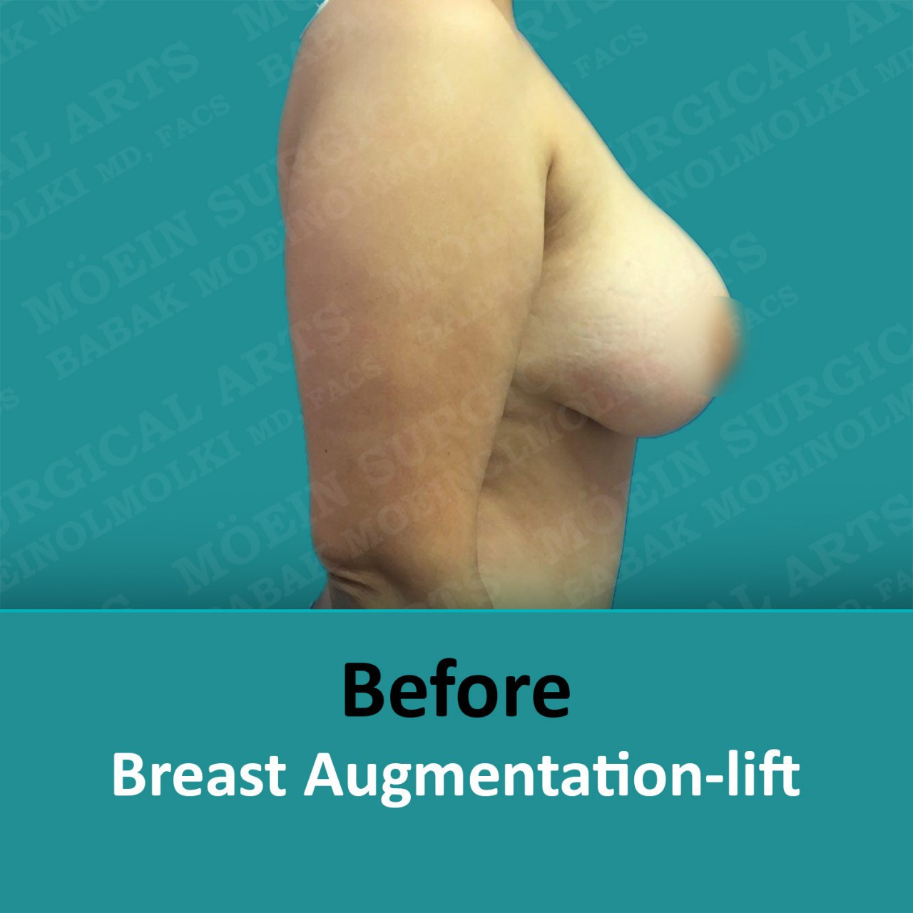 breast lift and augmentation surgery recovery before