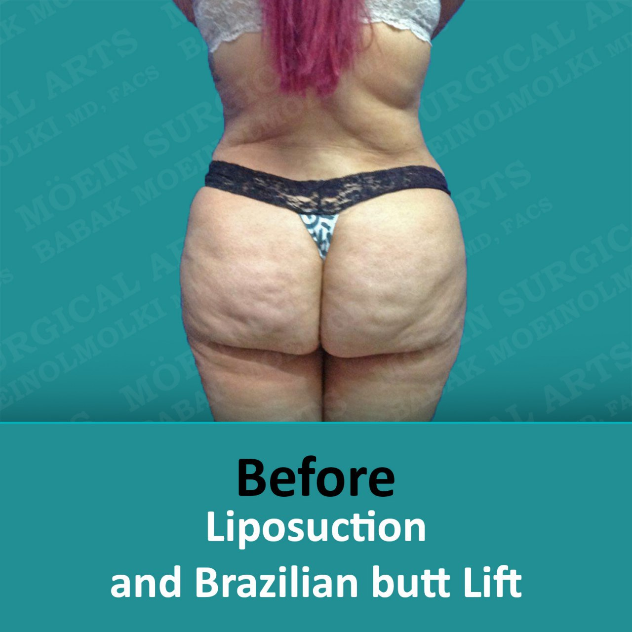 Liposuction and Brazilian butt lift before