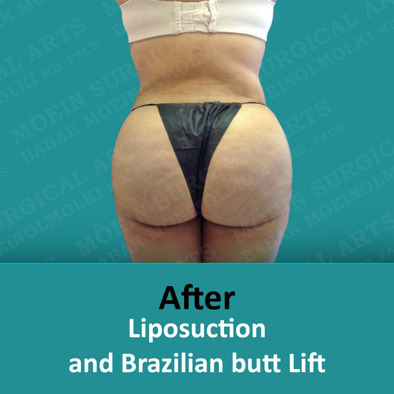 Liposuction and Brazilian butt lift after