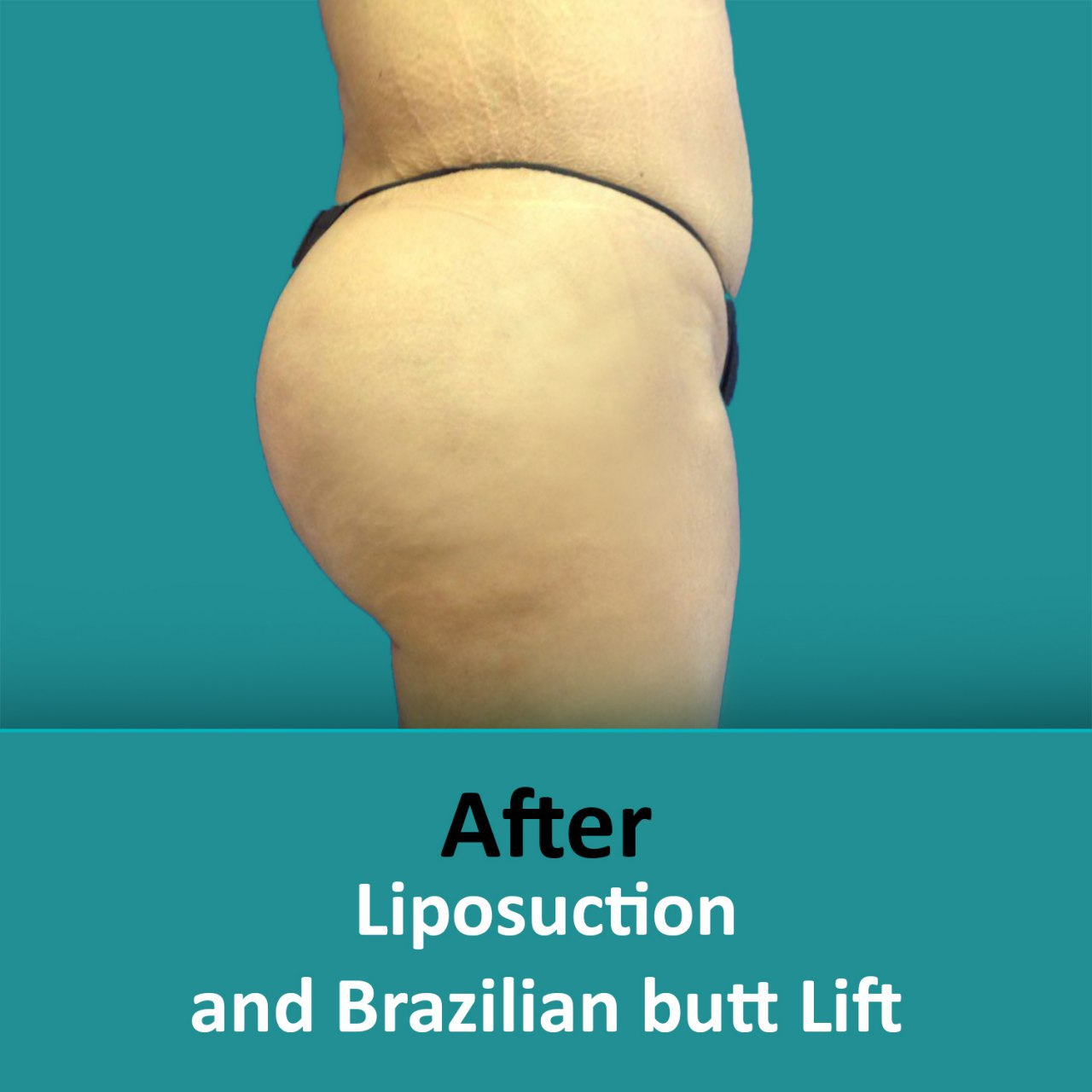 plastic surgery Brazilian butt lift after