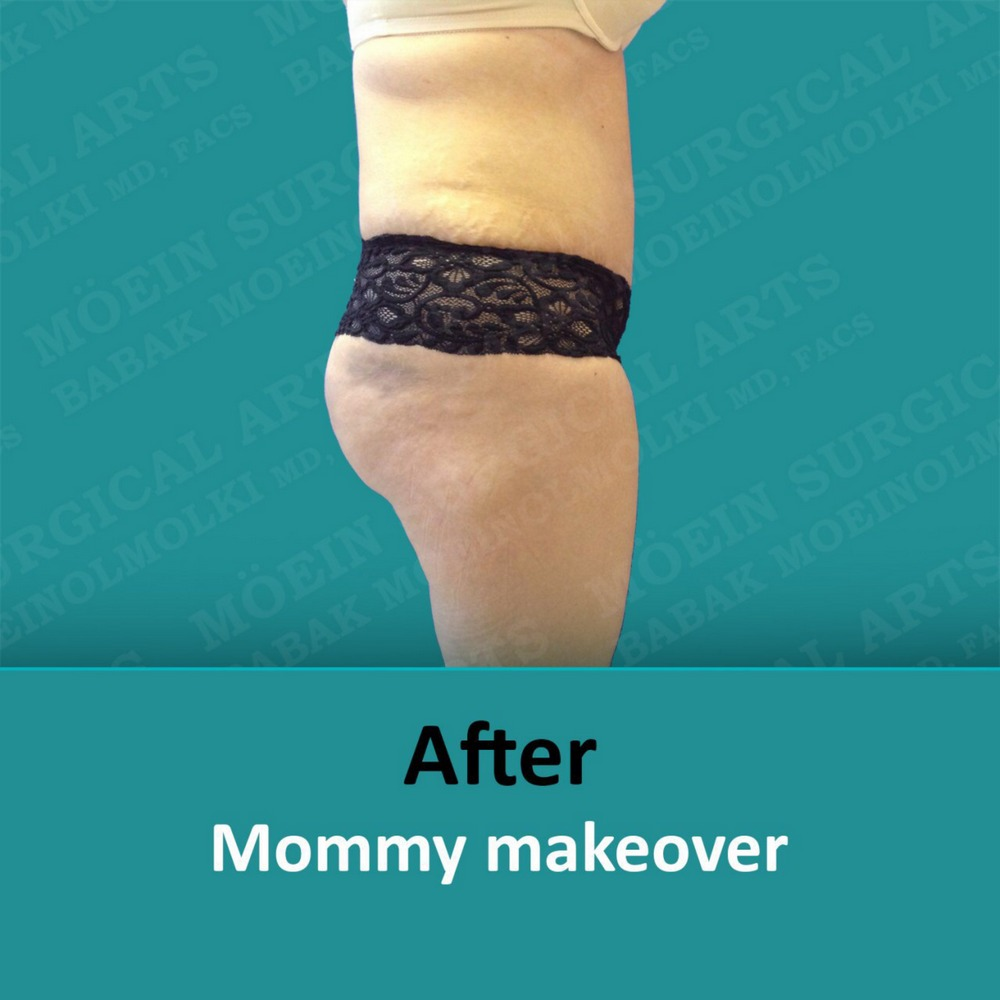 mommy makeover surgery after
