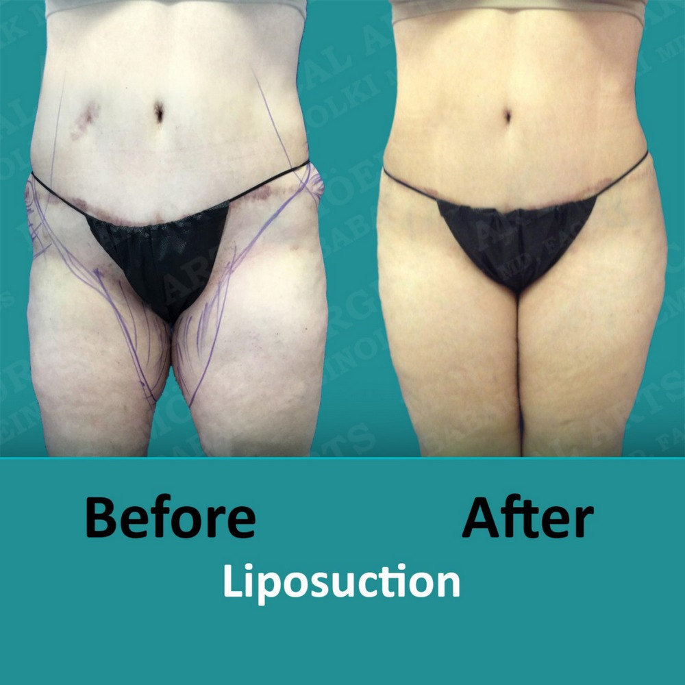 lipo of body before and after