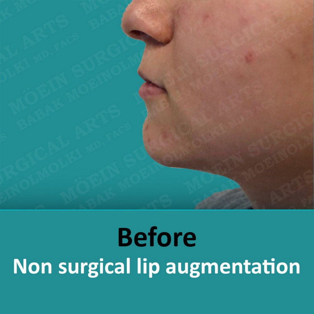 LIP AUGMENTATION before result