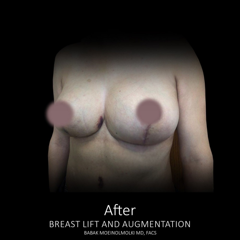 breast lift and breast augmentation after photo