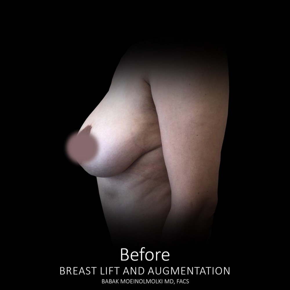 recovery before breast lift and augmentation