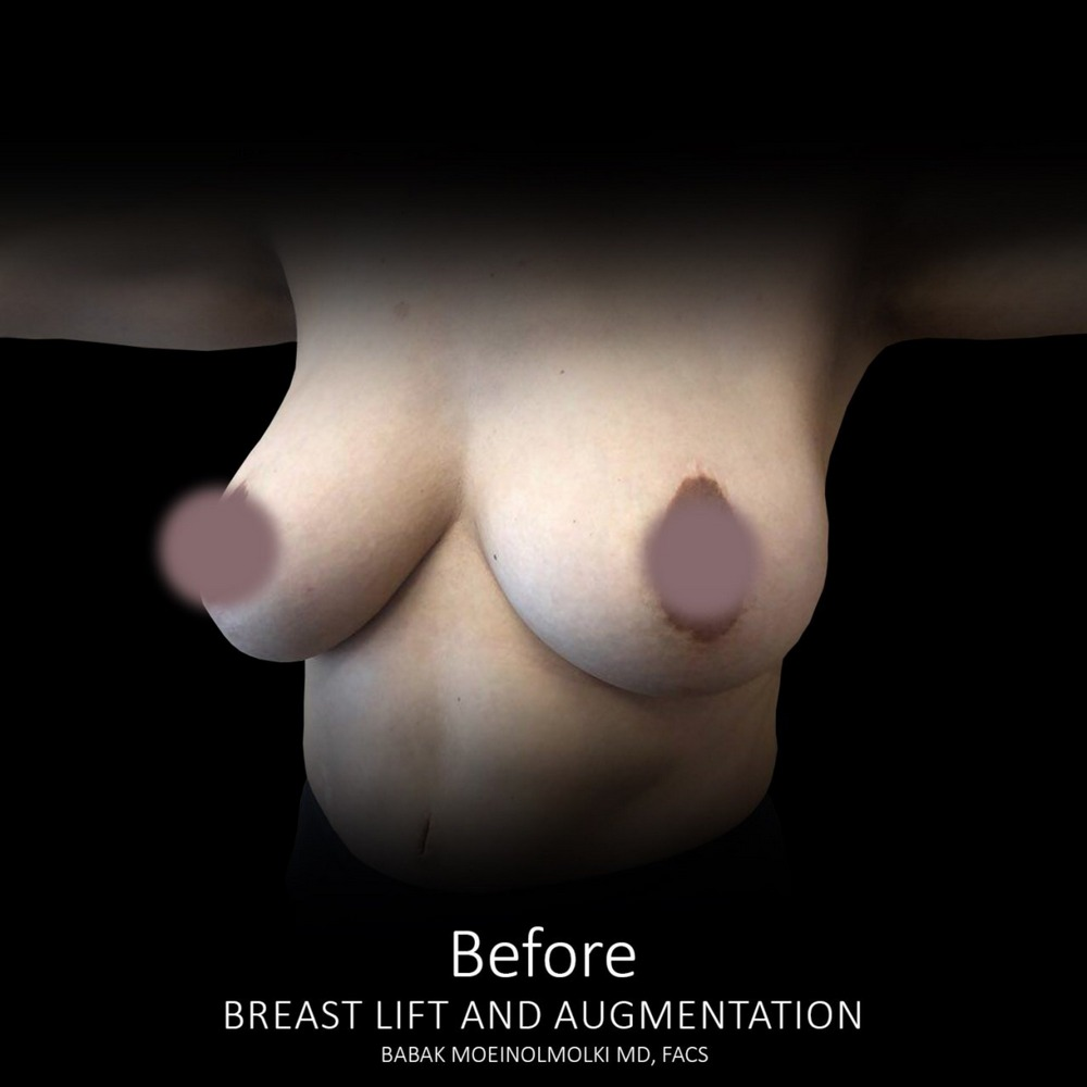 breast lift and breast augmentation before photos