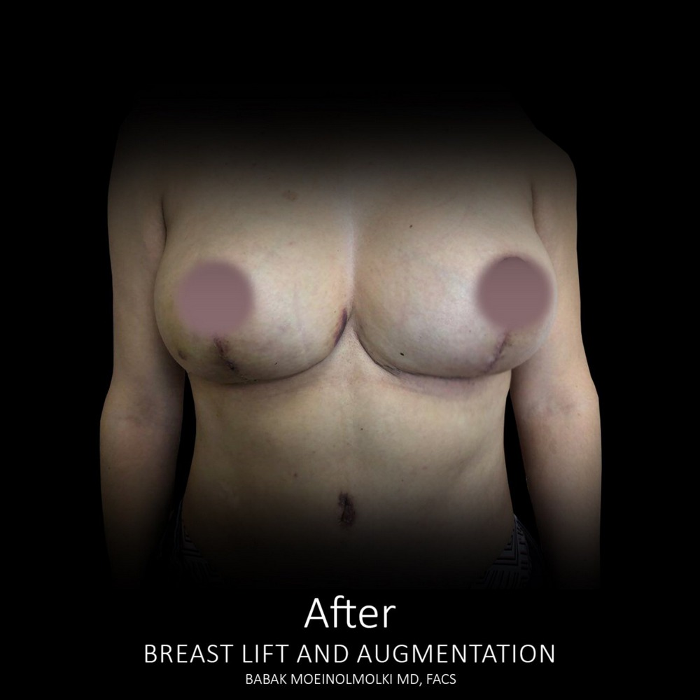 breast lift and augmentation surgery scar after