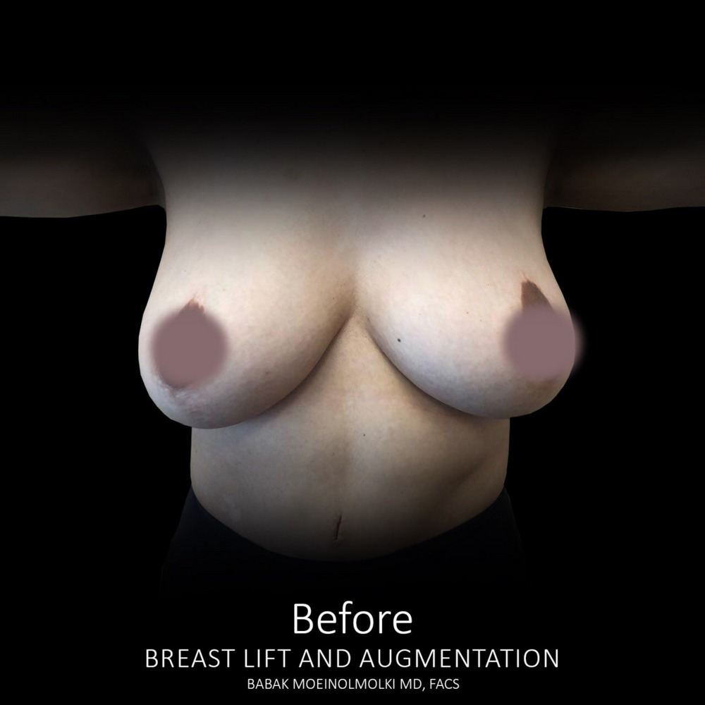 breast lift and augmentation surgery scar before