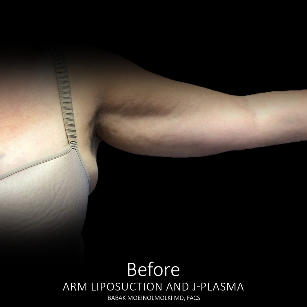 smart lipo arms before