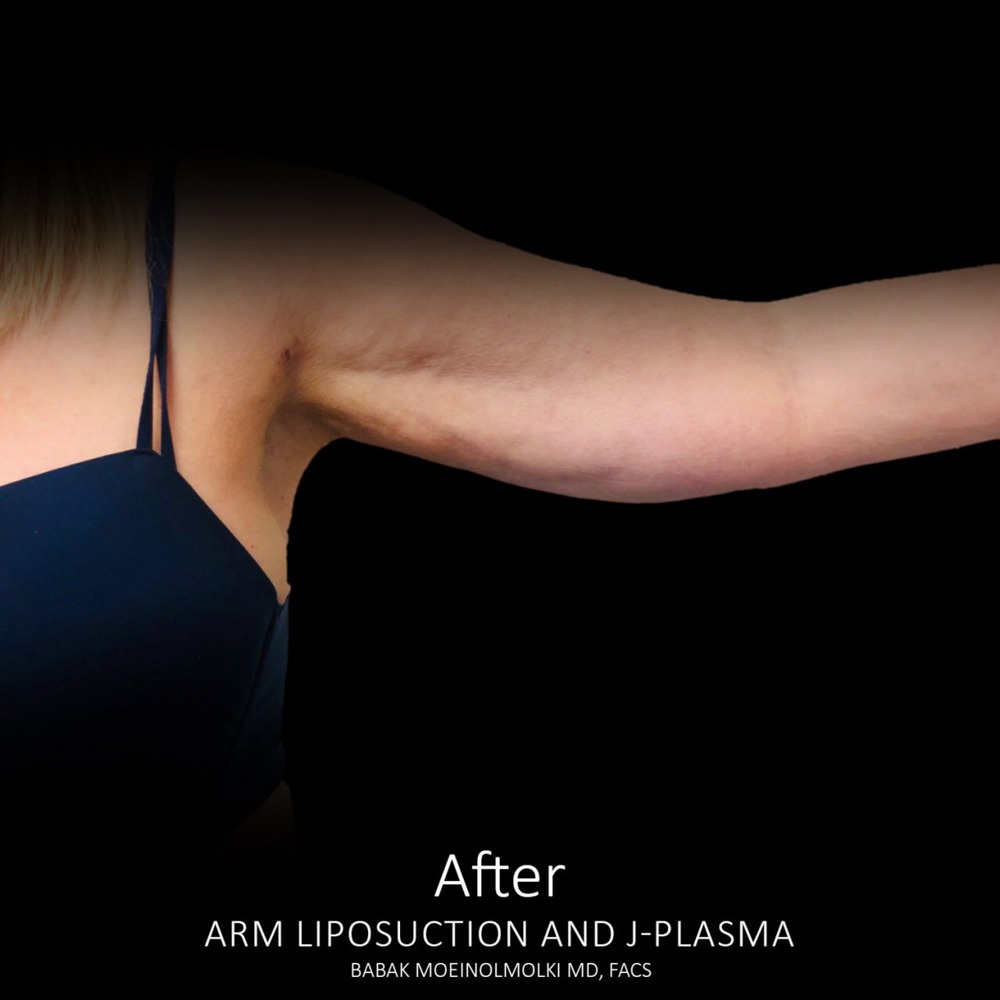 smart lipo arms after