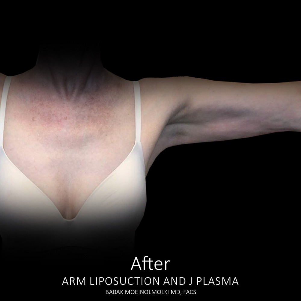 arm reduction after