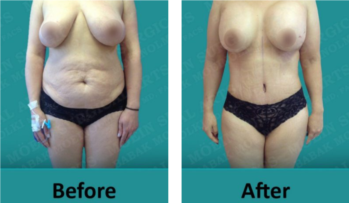 best tummy tuck surgeon