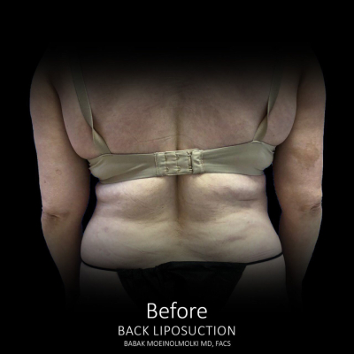 Vaser Liposuction of back waist flank