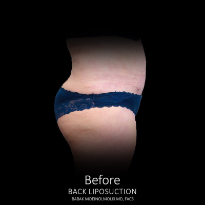 Liposuction result