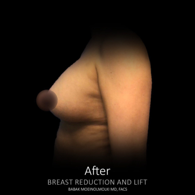 after breast lift and augmentation with fat transfer