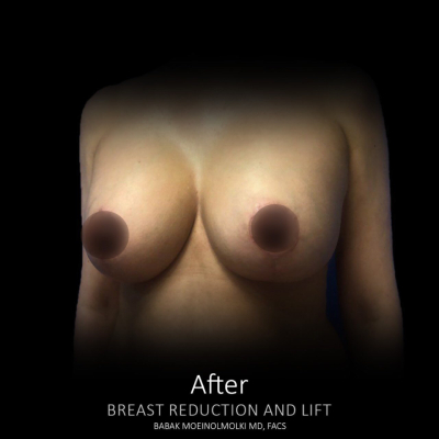 fat transfer breast augmentation before