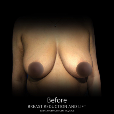 before breast lift and augmentation los angeles