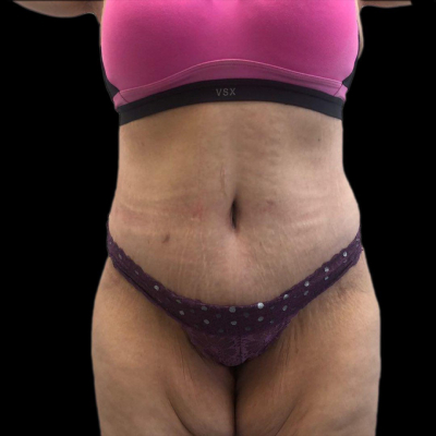 After Extended Tummy tuck and liposuction of waist and flank