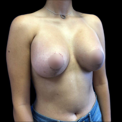 After Breast Augmentation and Lift