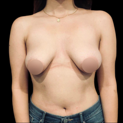 Before Breast Augmentation and Lift